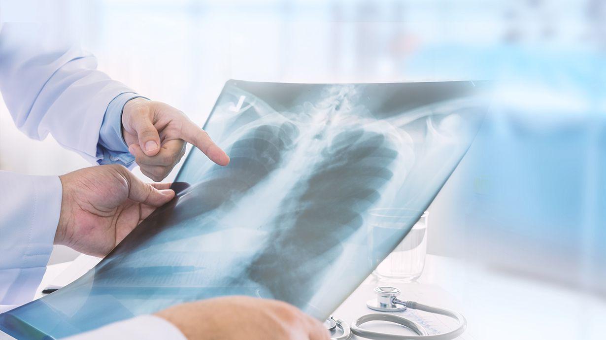 El asma afecta a 235 millones de personas en la actualidad.