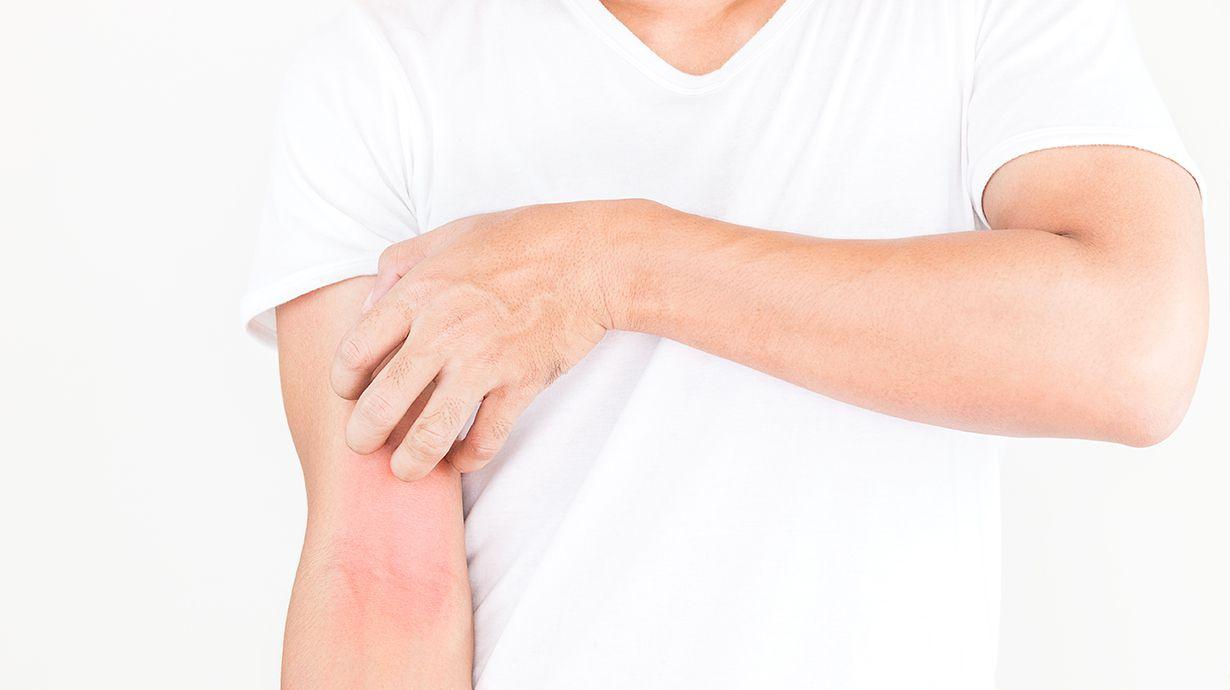 La dermatitis atypic es un trastorno crónica y prolongado de la piel.