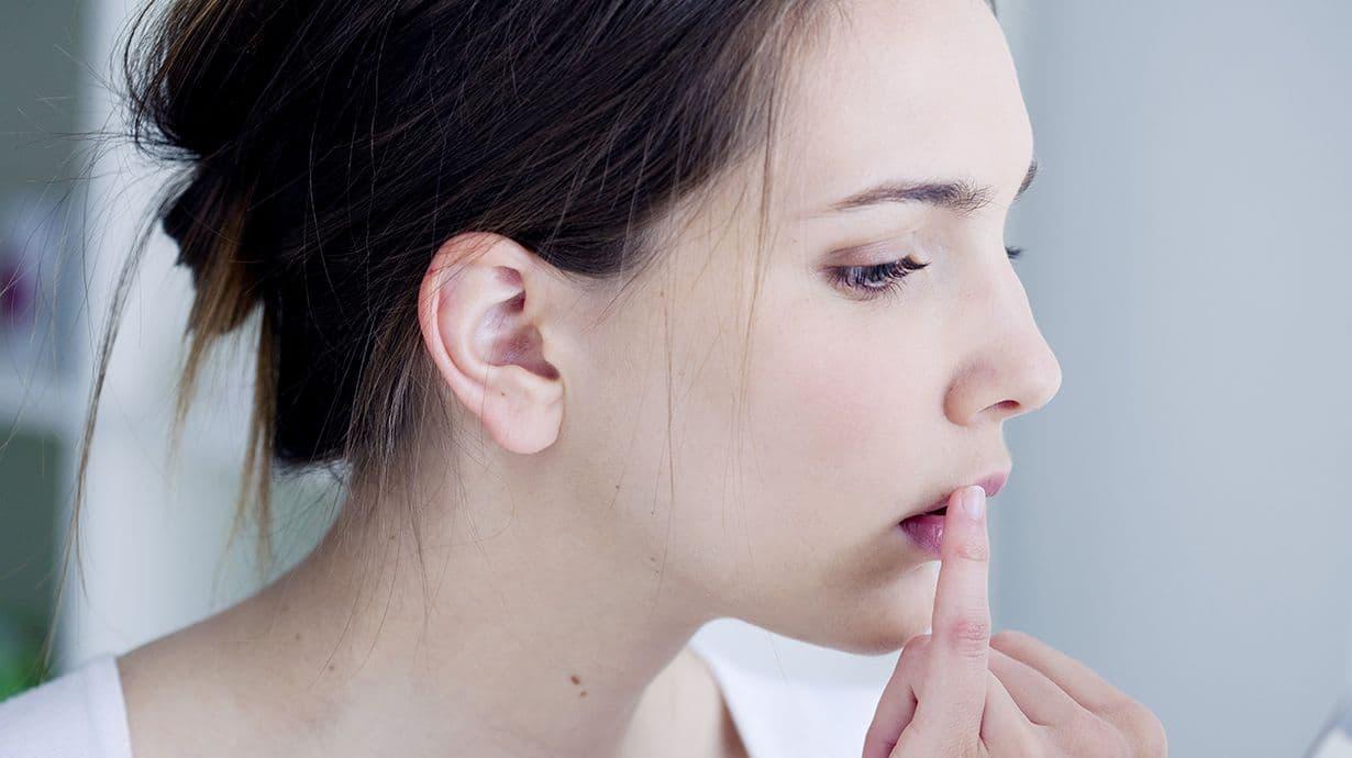 El herpes labial se debe a la presencia del virus VHS-1.